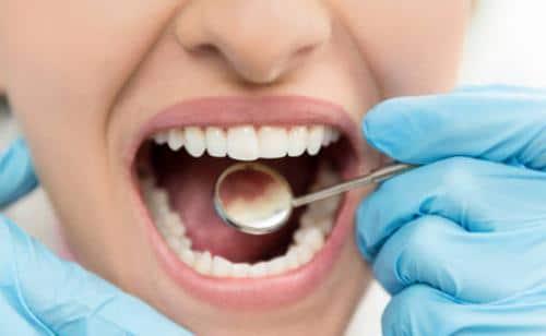 Conoce los problemas dentales más comunes
