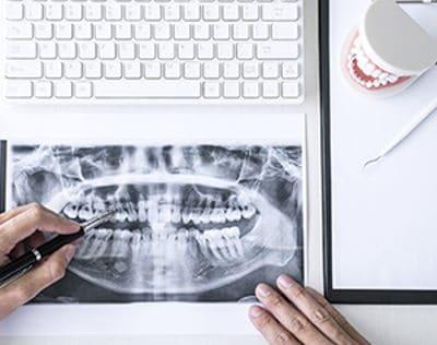 Informe pericial dental