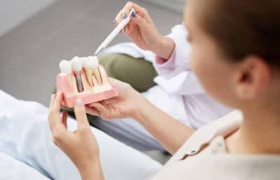 peritaje dental